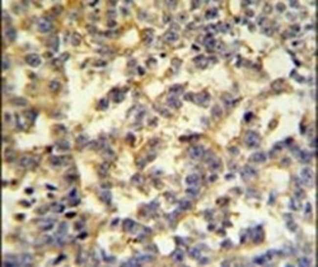 G6PD Rabbit anti-Human, Polyclonal, Invitrogen 400 µL; Unconjugated