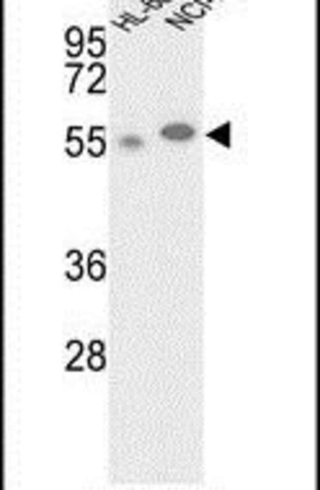 GALK2 Rabbit anti-Human, Polyclonal, Invitrogen 400 µL; Unconjugated
