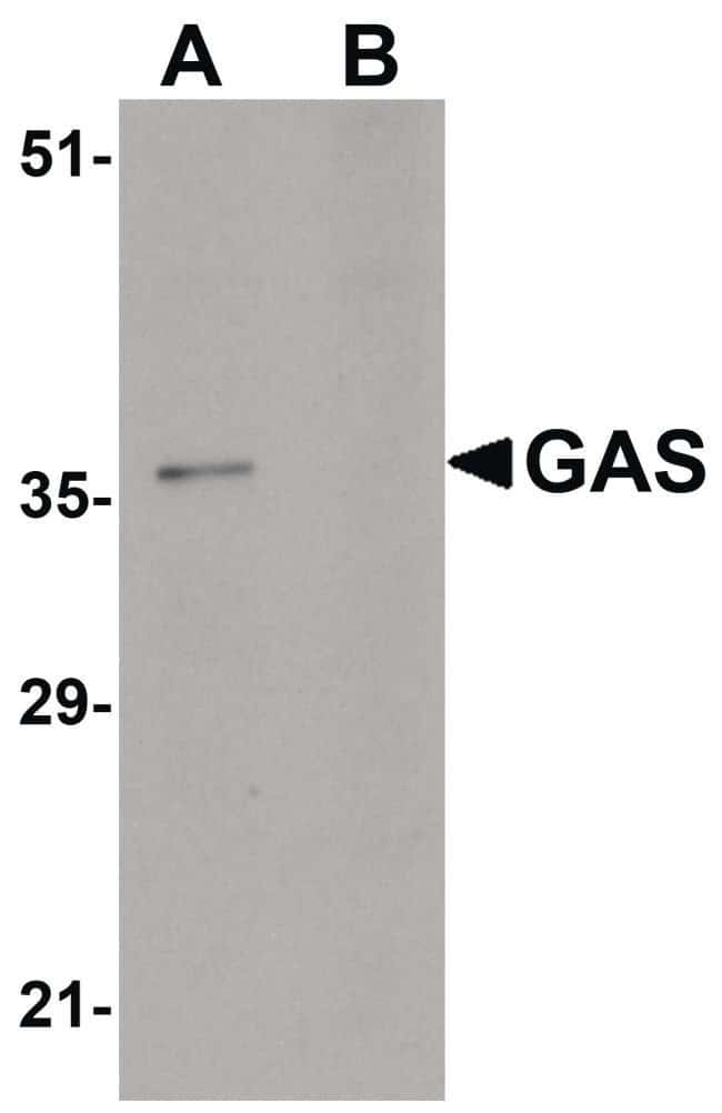 PAGR1 Rabbit anti-Human, Mouse, Polyclonal, Invitrogen 100 µg; Unconjugated