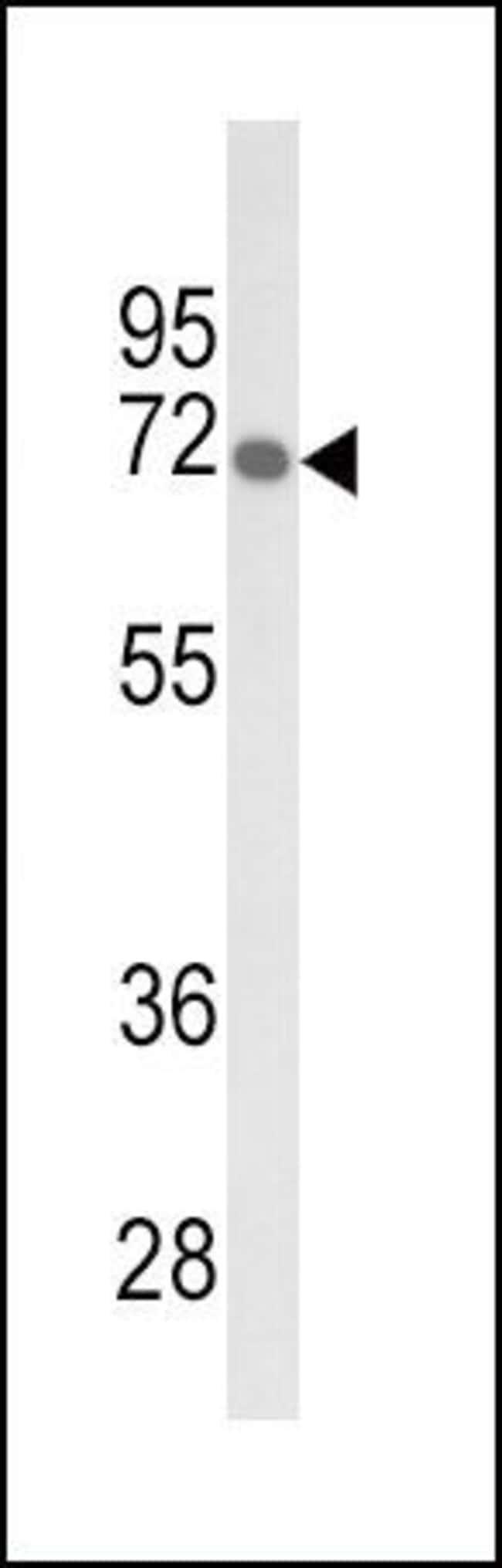 GBE1 Rabbit anti-Human, Mouse, Polyclonal, Invitrogen 400 µL; Unconjugated