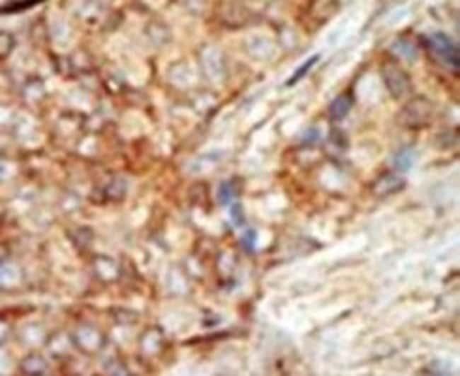 GCK Rabbit anti-Human, Rat, Polyclonal, Invitrogen 200µL; Unconjugated