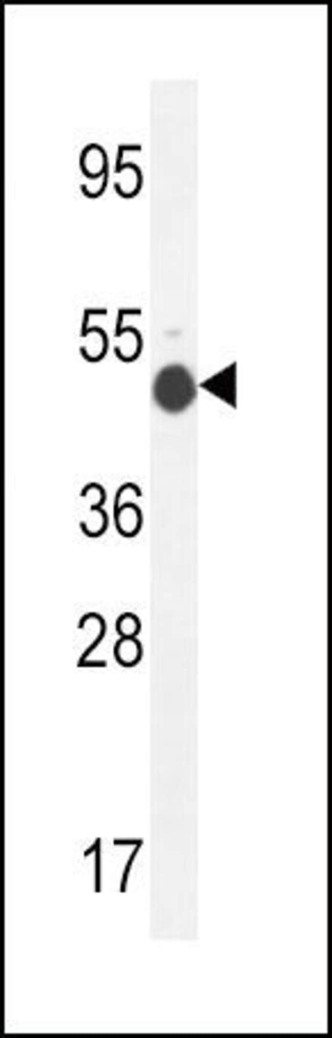GCNT2 Rabbit anti-Human, Mouse, Polyclonal, Invitrogen 400 µL; Unconjugated