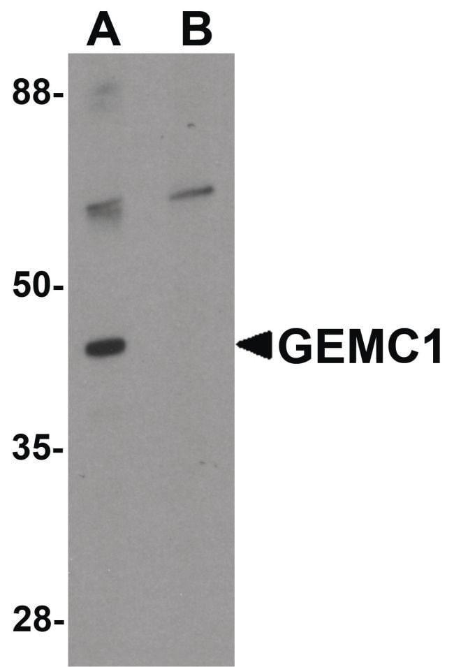 GEMC1 Rabbit anti-Human, Mouse, Polyclonal, Invitrogen 100 µg; Unconjugated