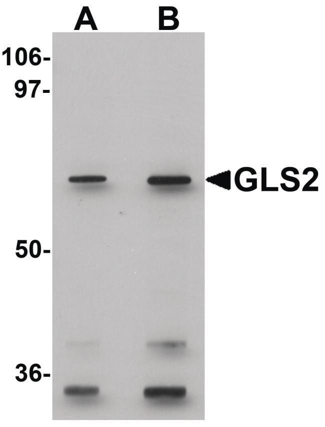 GLS2 Rabbit anti-Human, Mouse, Rat, Polyclonal, Invitrogen 100 µg;