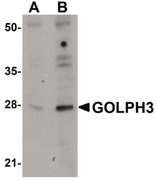 GOLPH3 Rabbit anti-Human, Mouse, Rat, Polyclonal, Invitrogen 100 µg;
