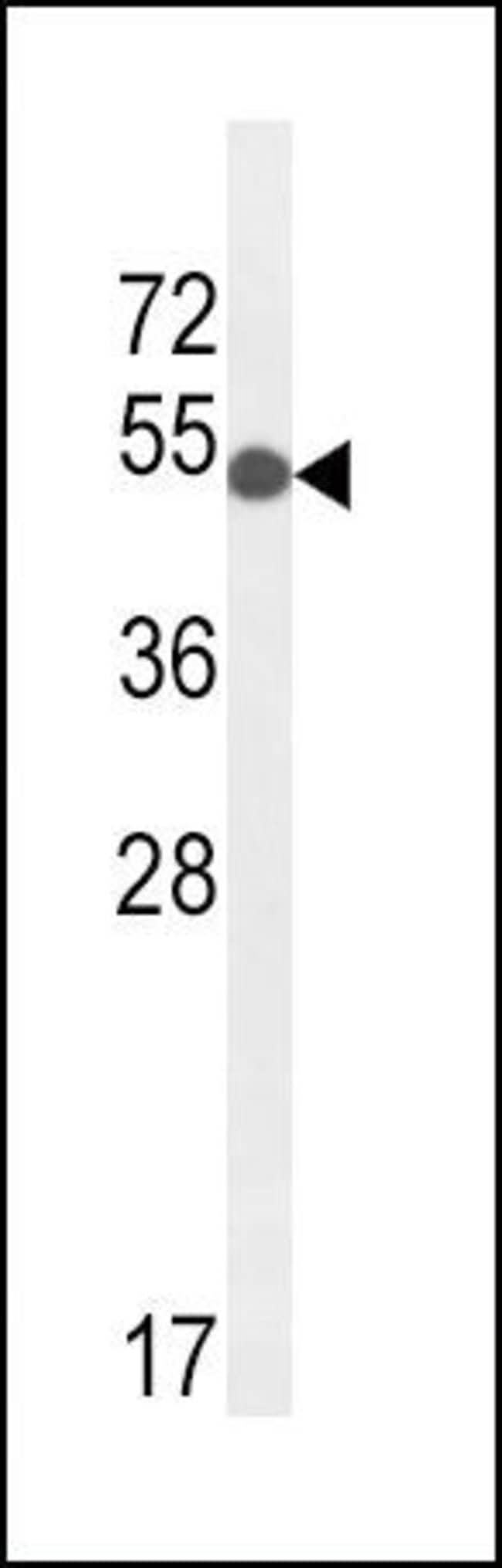 GPI Rabbit anti-Human, Mouse, Polyclonal, Invitrogen 400 µL; Unconjugated