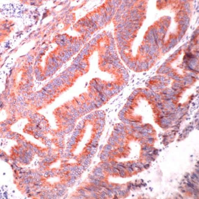 HSPA9 Rabbit anti-Human, Polyclonal, Invitrogen 1 mL; Unconjugated:Antibodies