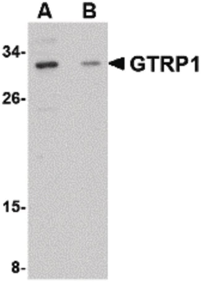 GRTP1 Rabbit anti-Human, Mouse, Rat, Polyclonal, Invitrogen 100 µg;