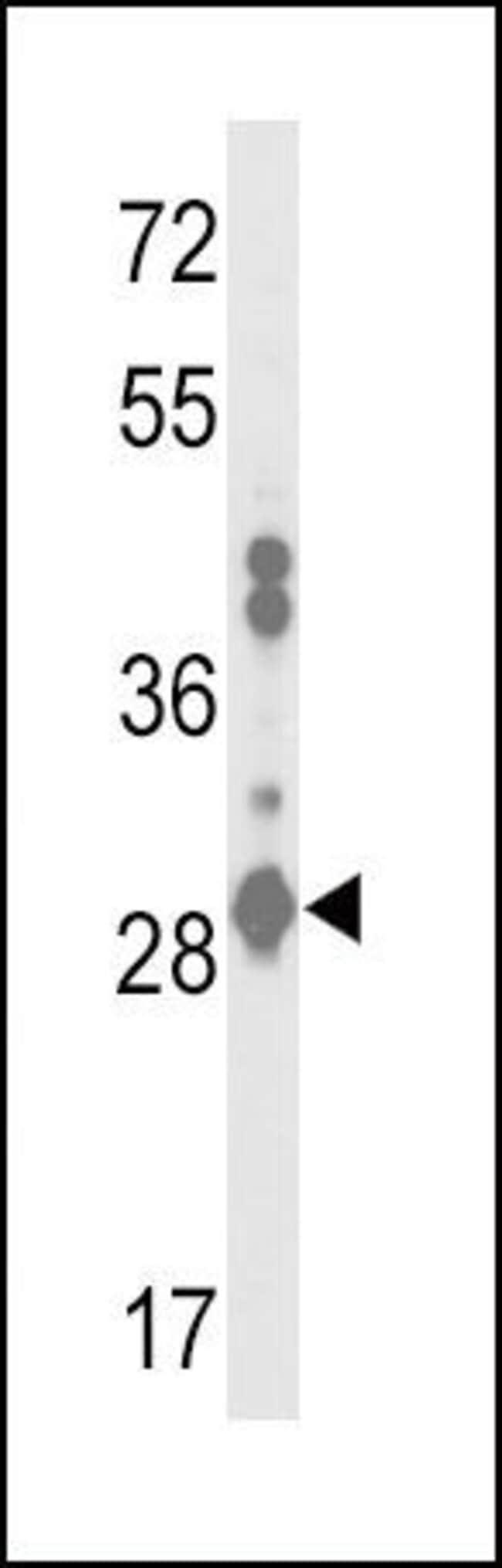 GSTA2 Rabbit anti-Human, Polyclonal, Invitrogen 400 µL; Unconjugated