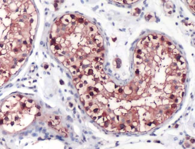 GLC1D Rabbit anti-Human, Mouse, Rat, Polyclonal, Invitrogen 1 mL; Unconjugated