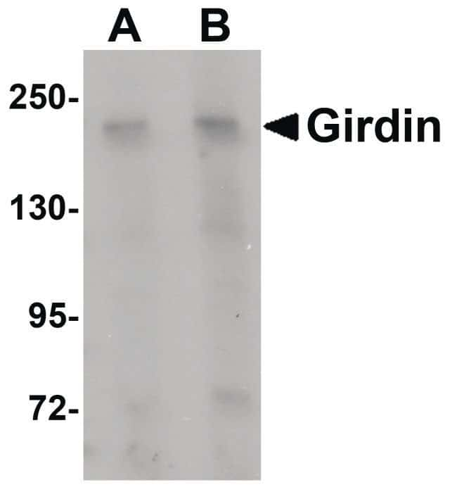 Girdin Rabbit anti-Human, Mouse, Rat, Polyclonal, Invitrogen 100 µg;