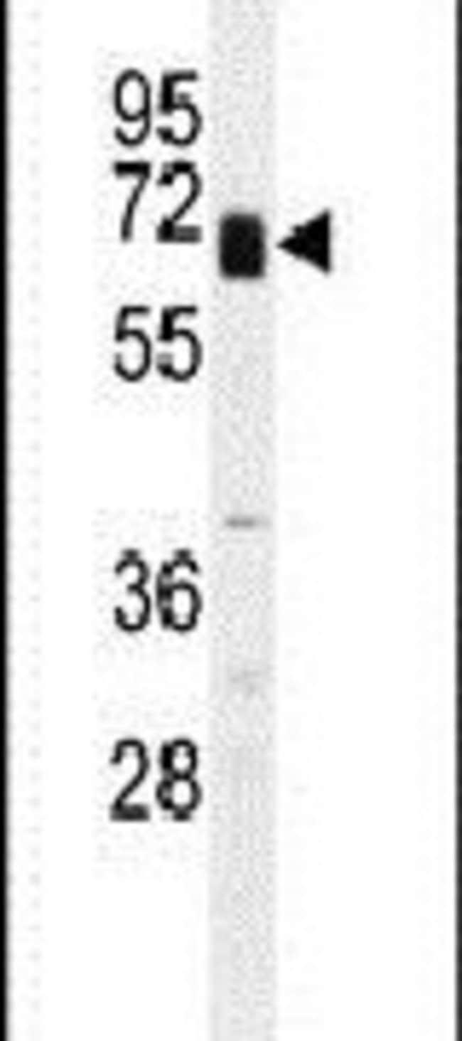 Glypican 3 Rabbit anti-Human, Mouse, Polyclonal, Invitrogen 400 µL;