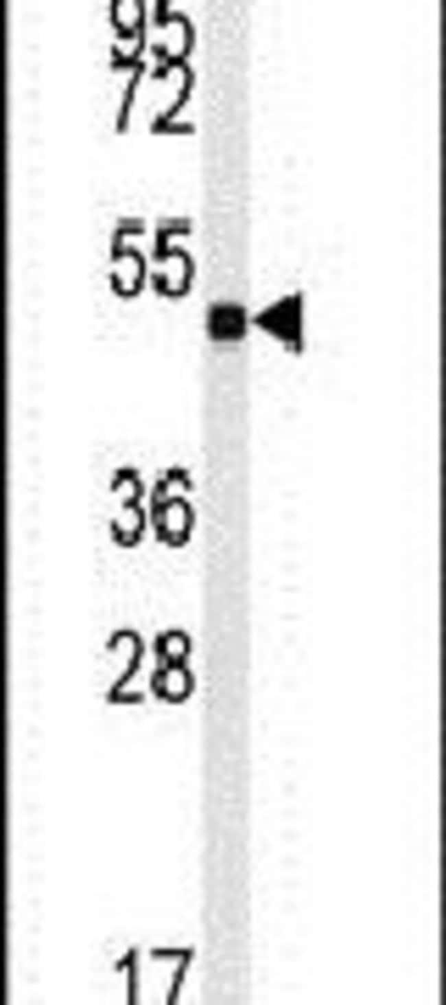 GUCY1A2 Rabbit anti-Human, Mouse, Polyclonal, Invitrogen 400 µL; Unconjugated