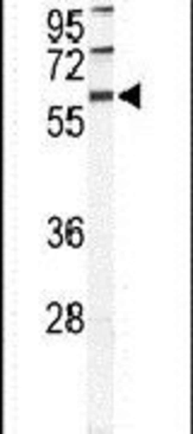 HABP2 Rabbit anti-Human, Mouse, Polyclonal, Invitrogen 400 µL; Unconjugated