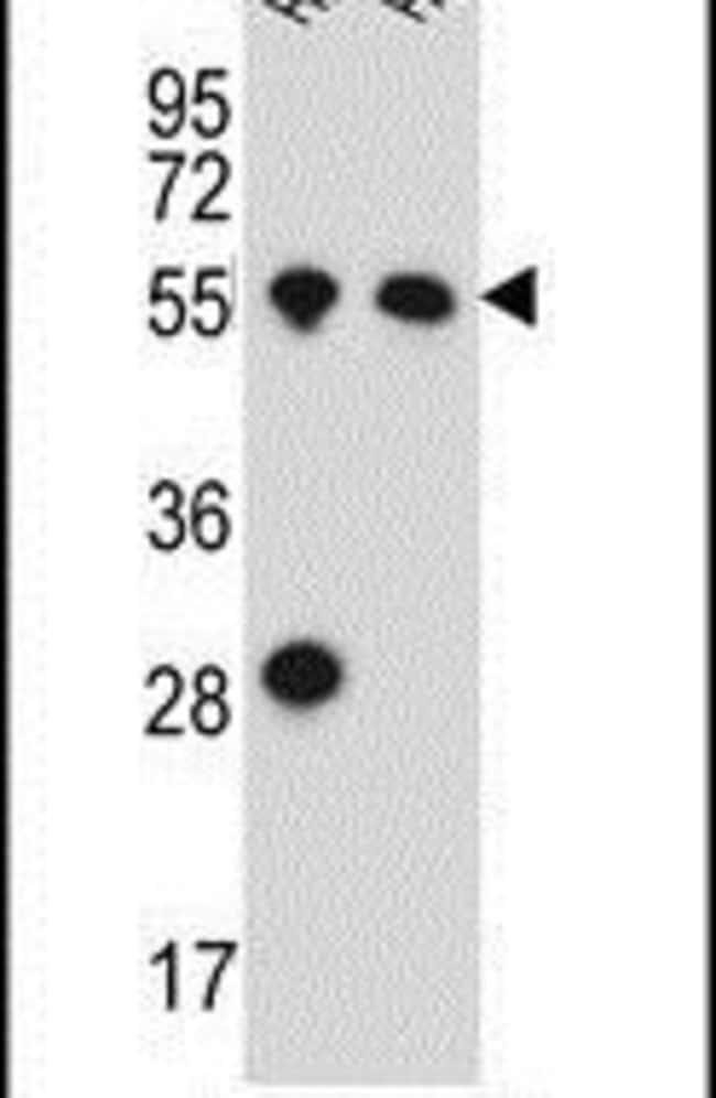 HAS2 Rabbit anti-Human, Polyclonal, Invitrogen 200µL; Unconjugated