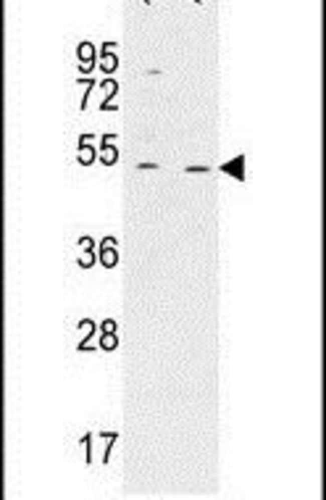 HAUS4 Rabbit anti-Human, Polyclonal, Invitrogen 400 µL; Unconjugated