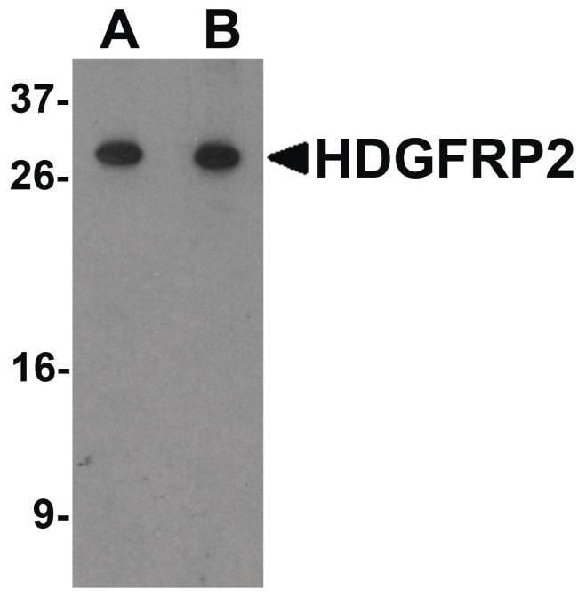 HDGFRP2 Rabbit anti-Human, Mouse, Rat, Polyclonal, Invitrogen 100 µg;