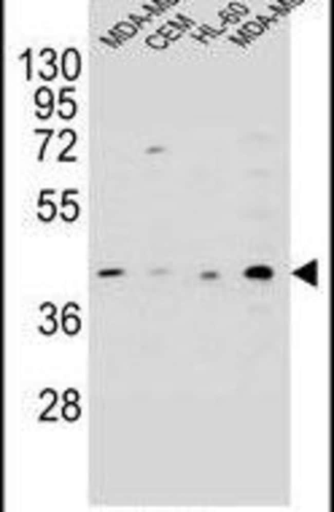 HHLA2 Rabbit anti-Human, Polyclonal, Invitrogen 400 µL; Unconjugated