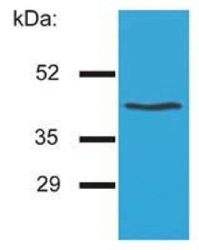 HLA-G Mouse anti-Human, Clone: MEM-G/4, Invitrogen 100 µg; Unconjugated