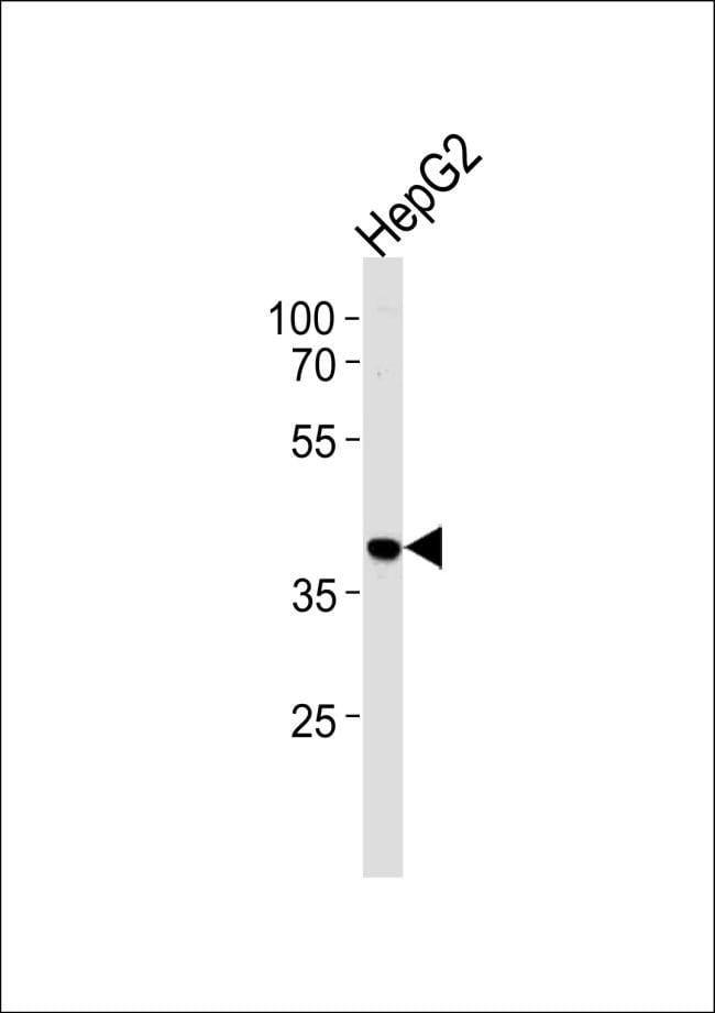 hnRNP AB Rabbit anti-Human, Polyclonal, Invitrogen 400 µL; Unconjugated