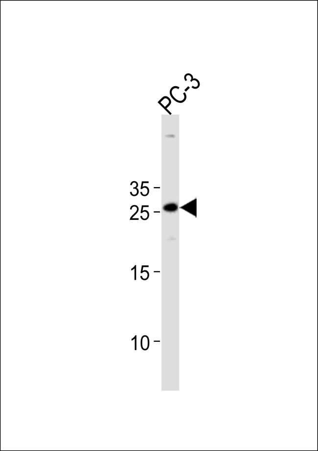 HOXC6 Rabbit anti-Human, Polyclonal, Invitrogen 400 µL; Unconjugated