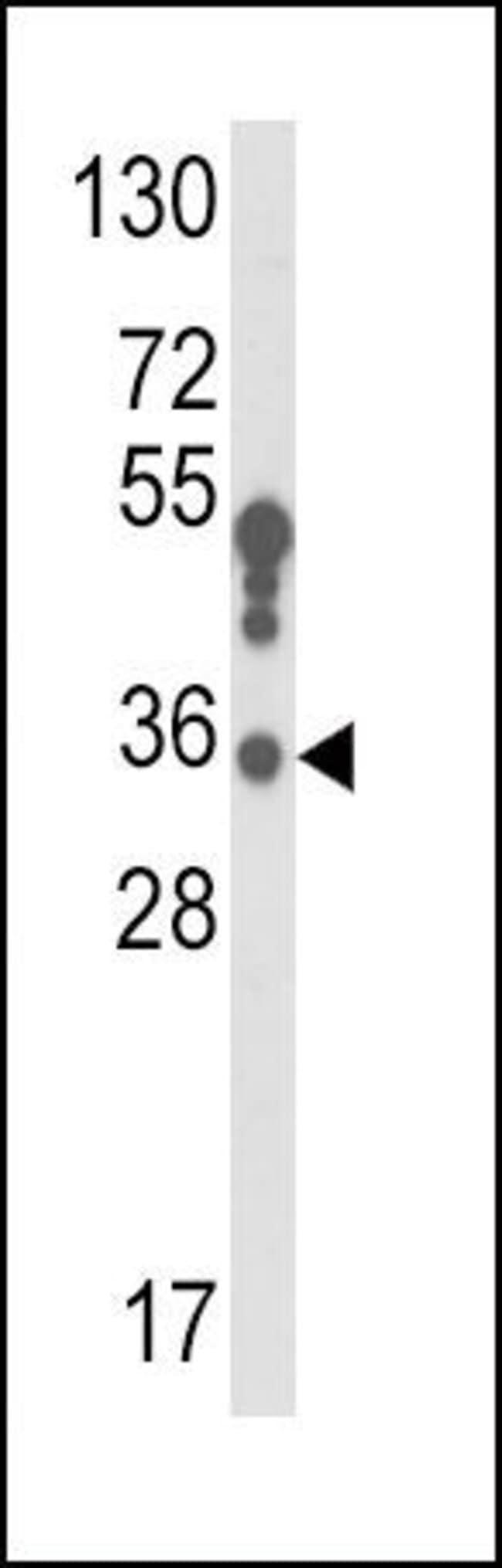 HSD17B3 Rabbit anti-Human, Polyclonal, Invitrogen 400 µL; Unconjugated