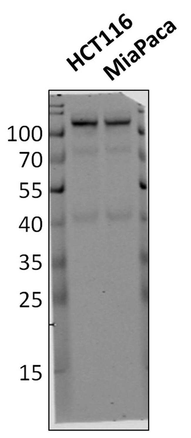 HK2 Rabbit anti-Human, Invitrogen 100 µg; Unconjugated