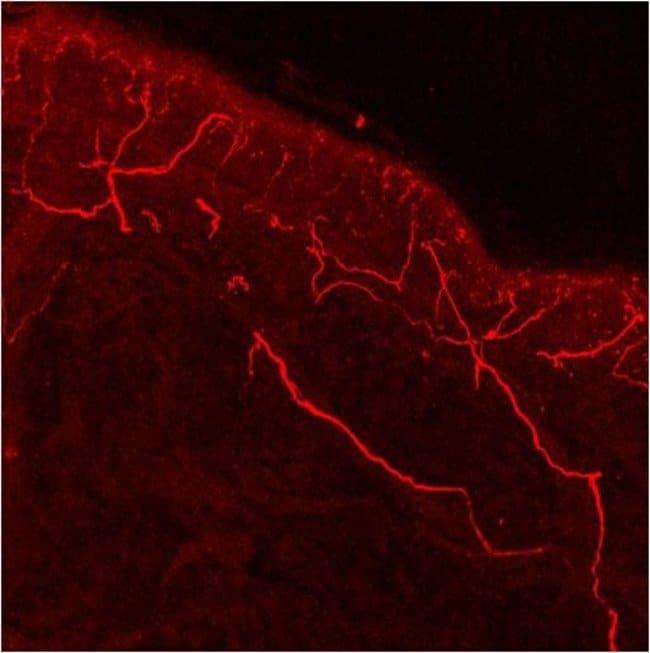 TRPV1 Rabbit anti-Human, Polyclonal, Invitrogen 100 µg; Unconjugated