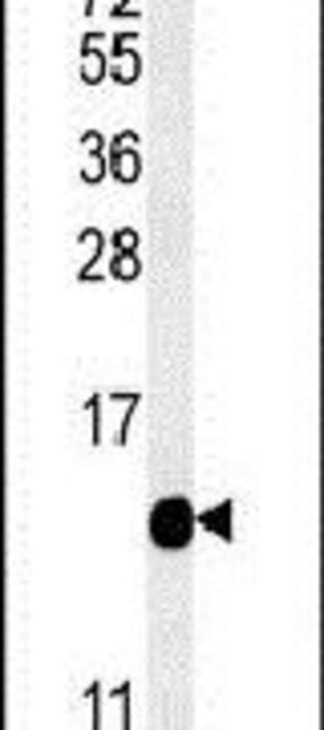 IFT20 Rabbit anti-Human, Mouse, Polyclonal, Invitrogen 400 µL; Unconjugated