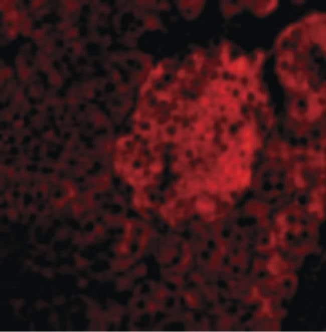 IL-23 p19 Rabbit anti-Human, Mouse, Polyclonal, Invitrogen 100 µg;