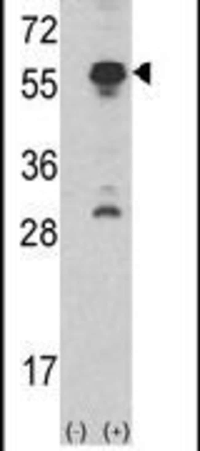 INHA Rabbit anti-Human, Mouse, Polyclonal, Invitrogen 400 µL; Unconjugated
