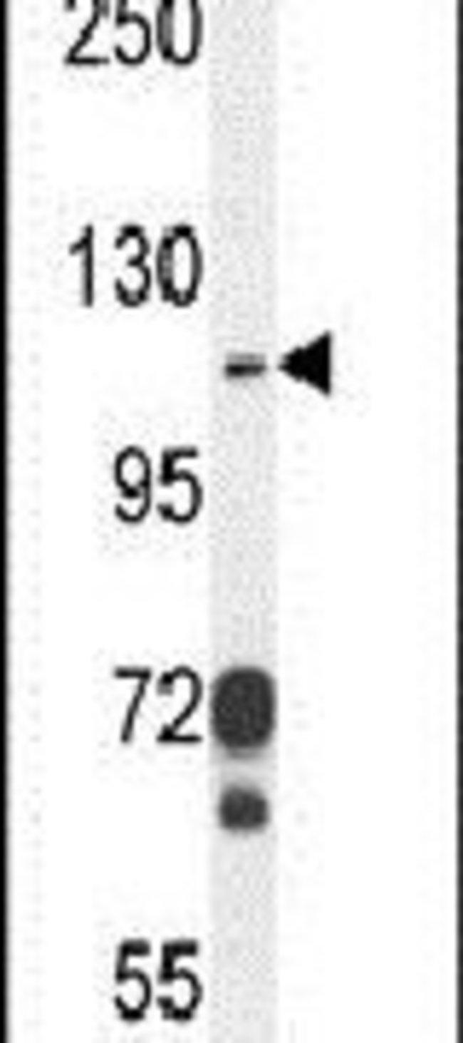 CD103 Rabbit anti-Human, Polyclonal, Invitrogen 400 µL; Unconjugated