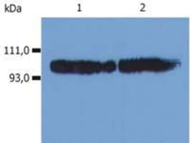 CD18 Mouse anti-Human, Clone: MEM-48, Invitrogen 100 μg; Unconjugated:Antibodies