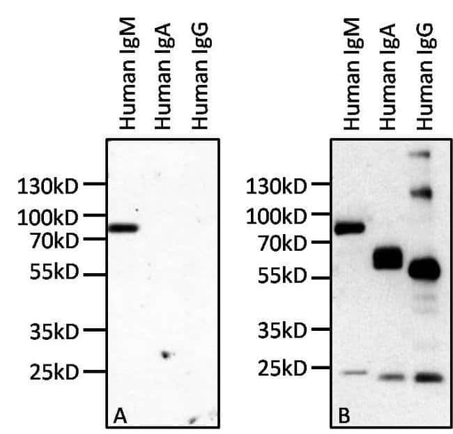 IgM Mouse anti-Human, Invitrogen™ 100 μg; Unconjugated Primary Antibodies IgM