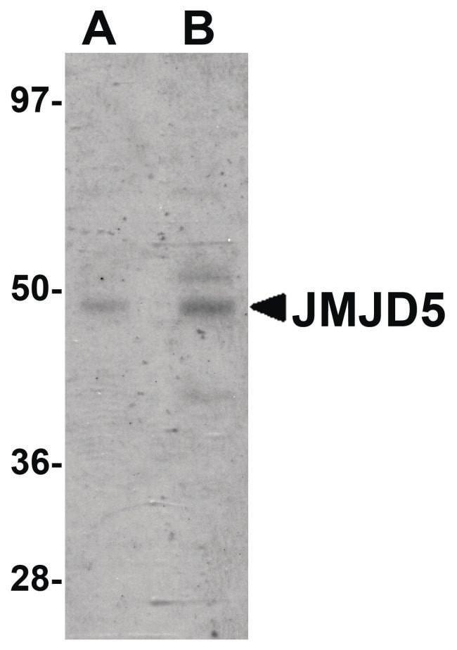 JMJD5 Rabbit anti-Human, Mouse, Rat, Polyclonal, Invitrogen 100 µg;