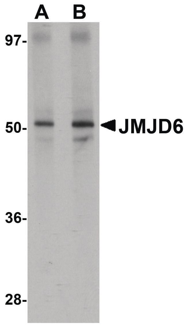 JMJD6 Rabbit anti-Human, Mouse, Rat, Polyclonal, Invitrogen 100 µg;