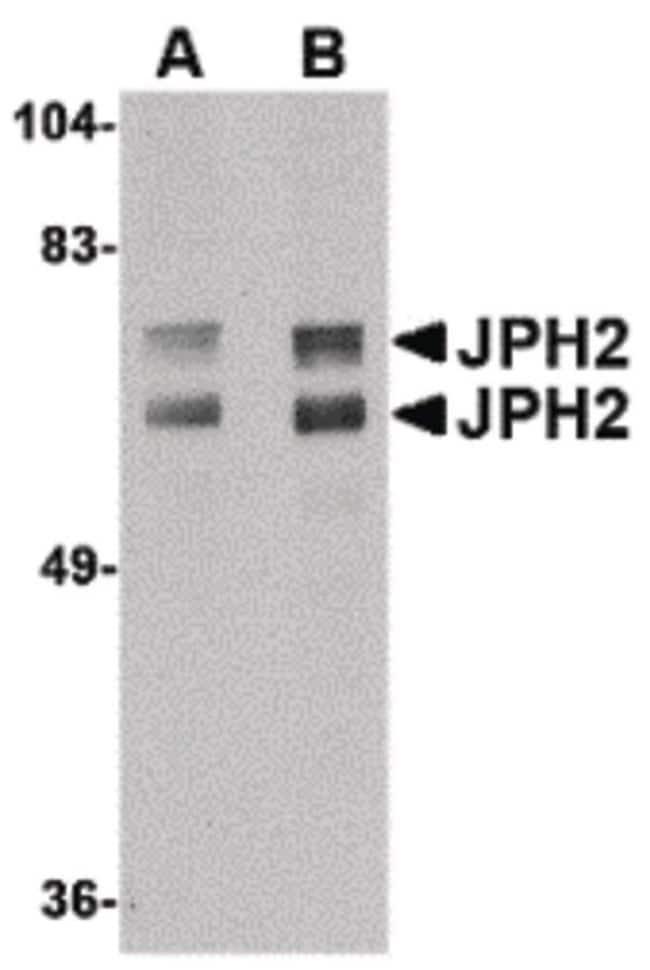 JPH2 Rabbit anti-Human, Mouse, Rat, Polyclonal, Invitrogen 100 µg;