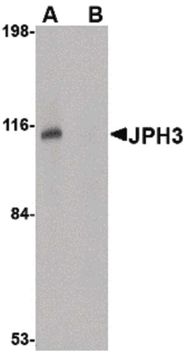 JPH3 Rabbit anti-Human, Mouse, Rat, Polyclonal, Invitrogen 100 µg;
