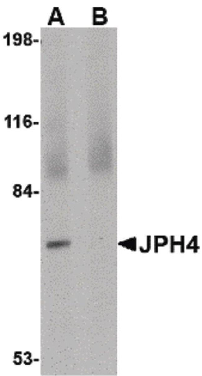 JPH4 Rabbit anti-Human, Mouse, Rat, Polyclonal, Invitrogen 100 µg;