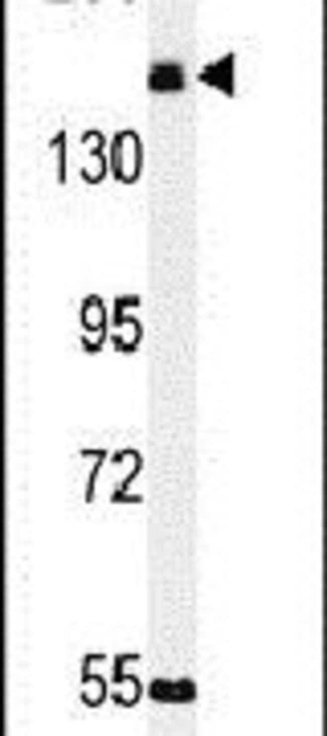 KIAA1529 Rabbit anti-Human, Mouse, Polyclonal, Invitrogen 400 μL; Unconjugated:Antibodies