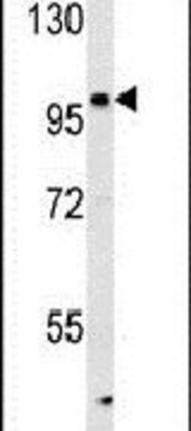 KIAA1688 Rabbit anti-Human, Mouse, Polyclonal, Invitrogen 400 µL;