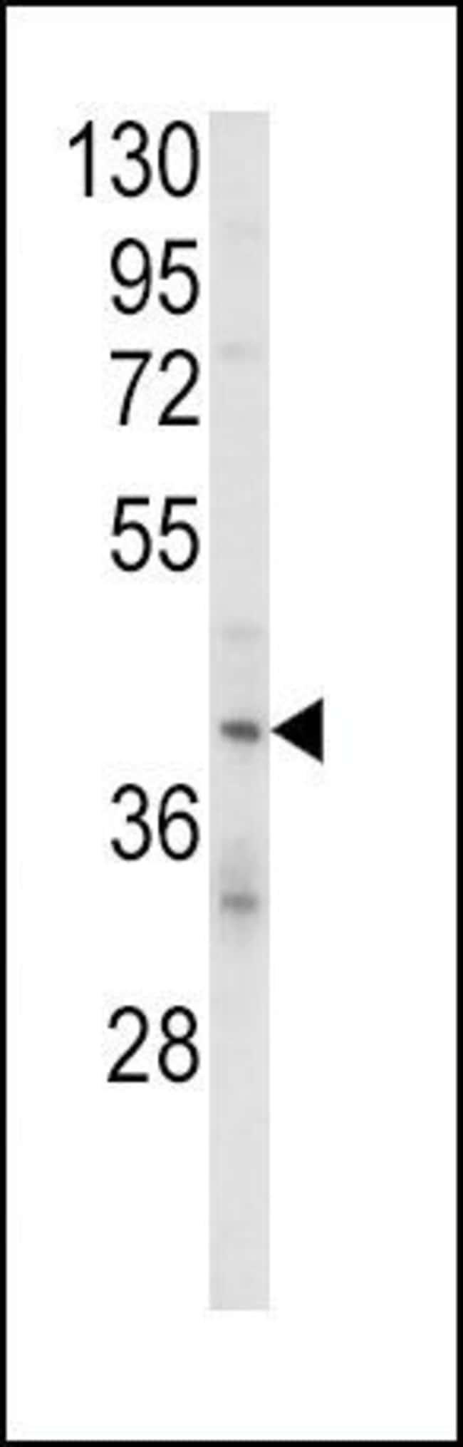 KIR2DL4 Rabbit anti-Human, Polyclonal, Invitrogen 400 µL; Unconjugated