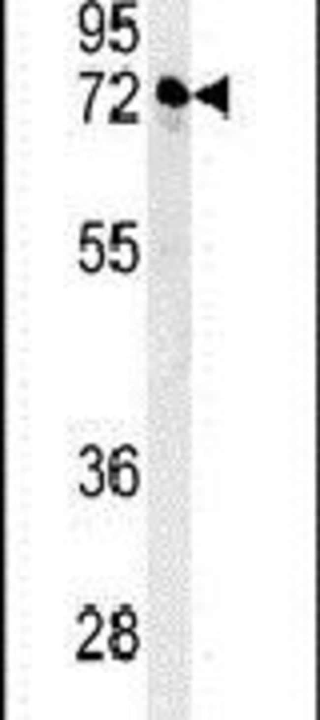 KLHL24 Rabbit anti-Human, Polyclonal, Invitrogen 400 µL; Unconjugated