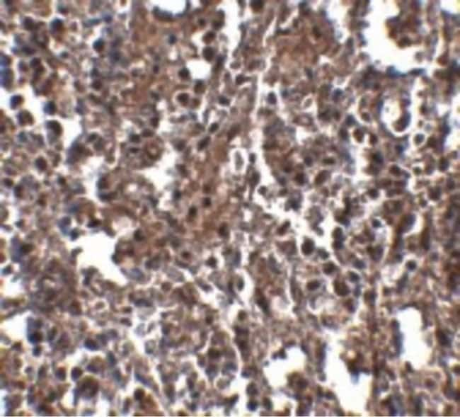 KLRA2 Rabbit anti-Mouse, Rat, Polyclonal, Invitrogen 100 µg; Unconjugated