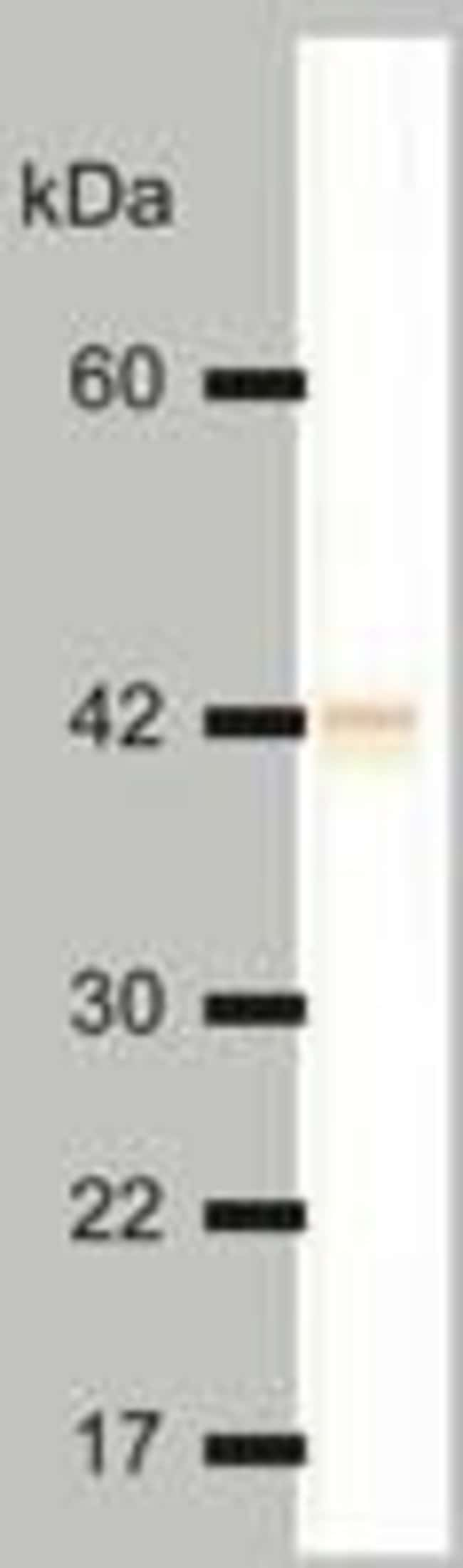 Cytokeratin 18 Mouse anti-Human, Clone: DC-10, Invitrogen 100 μg; Unconjugated:Antibodies