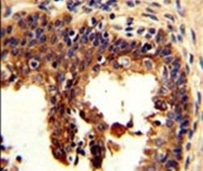Cytokeratin 4 Rabbit anti-Human, Mouse, Polyclonal, Invitrogen 400 µL;