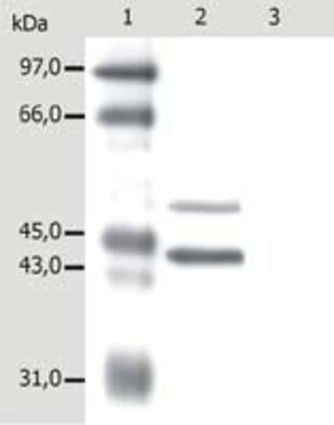 Cytokeratin 5/18 Mouse anti-Bovine, Canine, Hamster, Human, Mouse, Ovine,