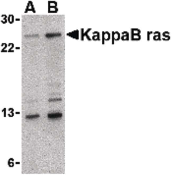 KappaB ras1 Rabbit anti-Human, Mouse, Rat, Polyclonal, Invitrogen 100 µg;