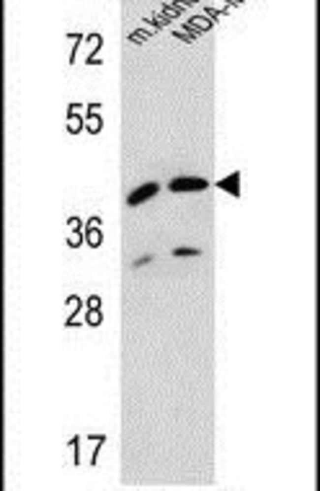 L2HGDH Rabbit anti-Human, Mouse, Polyclonal, Invitrogen 400 µL; Unconjugated