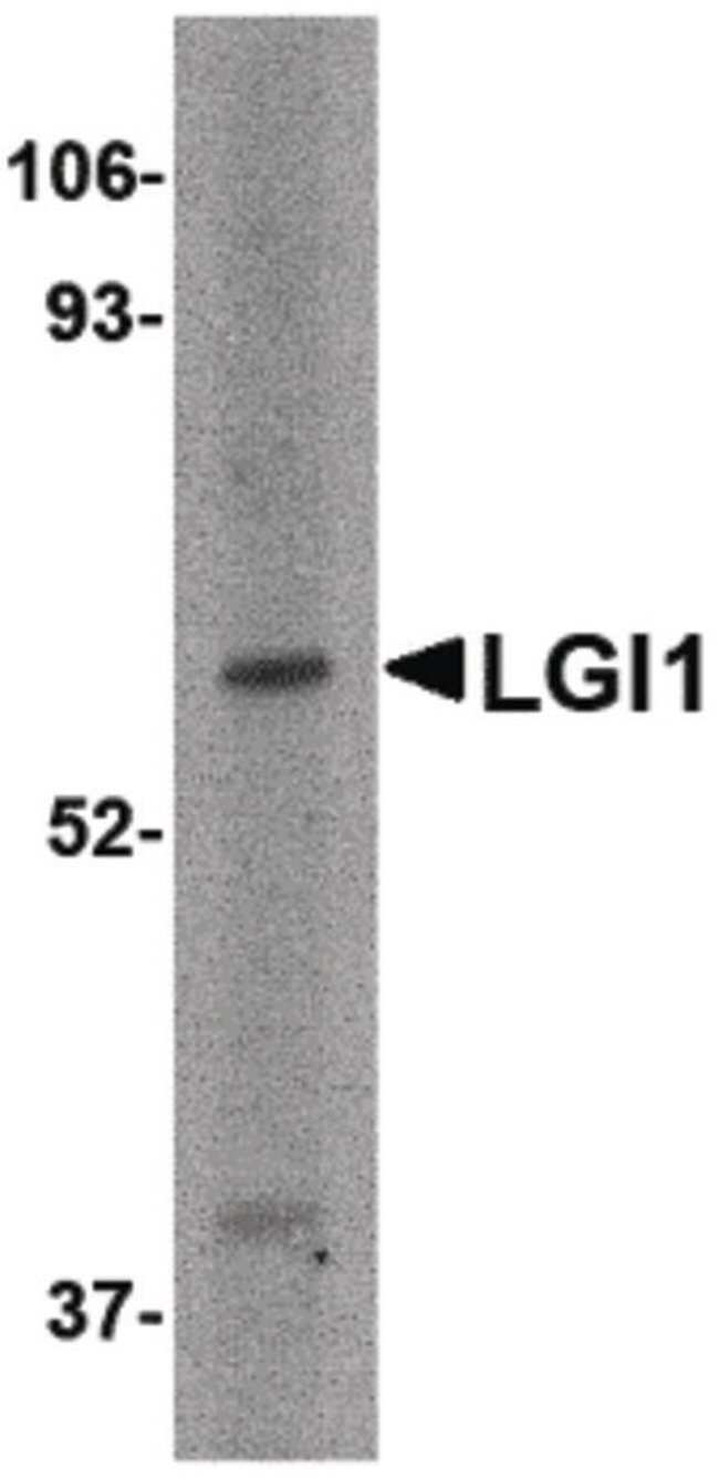 LGI1 Rabbit anti-Human, Mouse, Rat, Polyclonal, Invitrogen 100 µg;